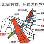 胸郭出口症候群、テスト方法、施述方法。