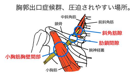 「小胸筋 関連痛 フリー」の画像検索結果