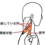 筋肉にはつながりがある。首のこりと肩こりの場合。