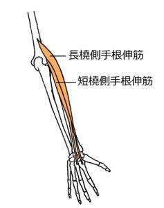 橈側手根伸筋