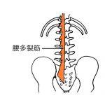腰痛の原因、腰多裂筋。