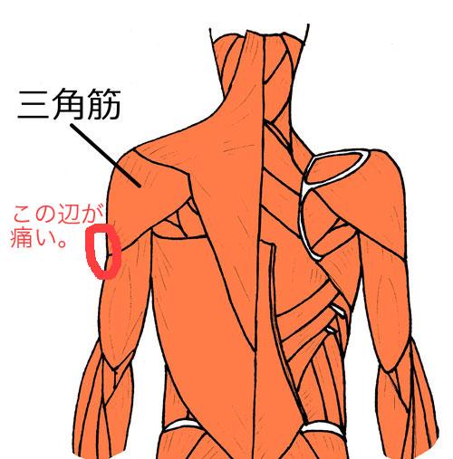 三角筋痛い場所