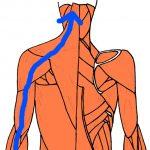 腕から頭に伝わり、頭痛を発生させるルート。