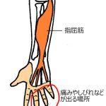 手の痺れの場所
