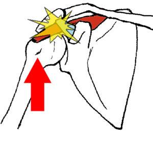 肩のインピンジメント