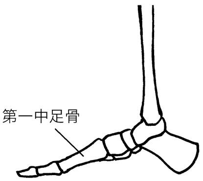 第一中足骨