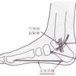 足の裏、かかとの痛み、足底筋膜炎、足のアライメントを整えて改善する方法